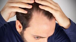 Curare i capelli secchi: la prevenzione prima di tutto
