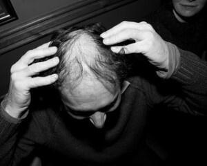 Costo del trapianto di capelli: attenzione agli eccessi
