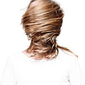 Trapianto di capelli per donna: il fattore estetico diventa priorità