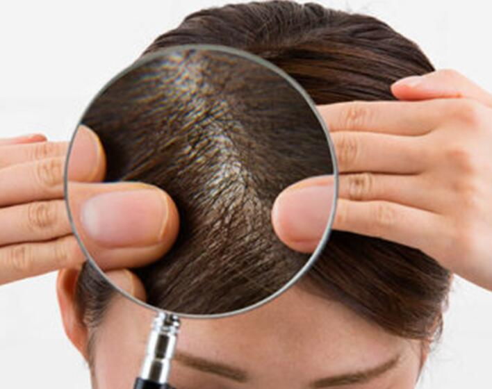 Problemi al cuoio capelluto: ecco i più diffusi
