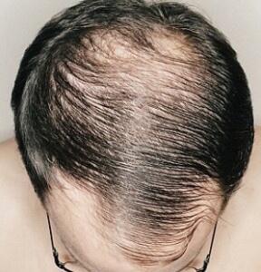 Infoltimento dei capelli naturali: un primo rimedio