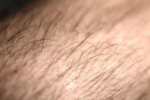 Prodotti per il diradamento dei capelli: non credete ai miracoli