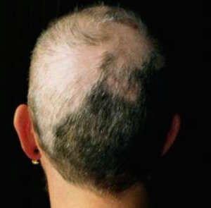 Quali sono i sintomi dell'alopecia areata?