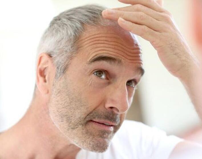 Prodotti anticaduta capelli per uomo: la qualità paga