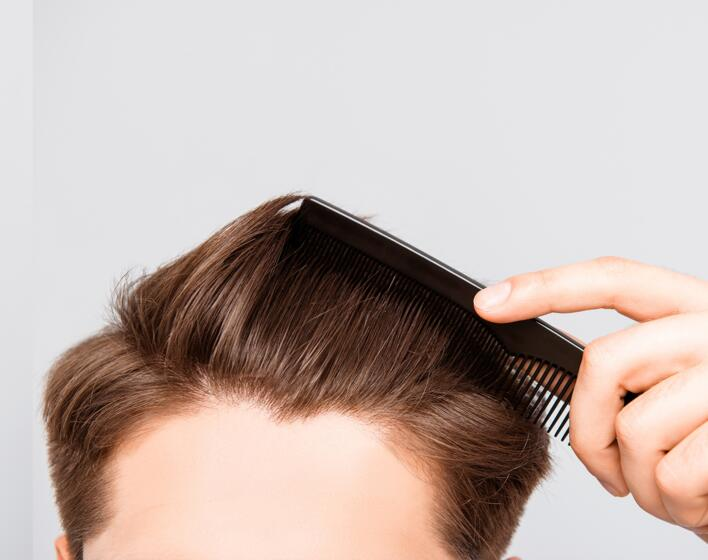 Rimedi contro la perdita dei capelli nell'uomo