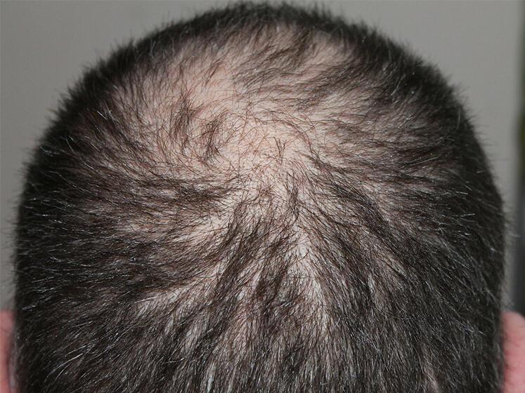 Alopecia areata: si può guarire senza farmaci?