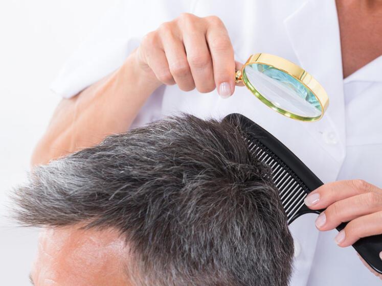Caduta dei capelli: meglio il dermatologo o il tricologo?