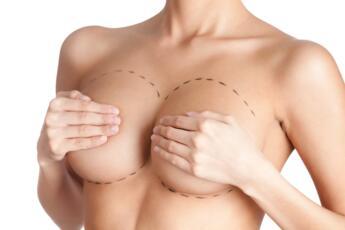 Voglio un seno nuovo e lo sperimento subito: i vantaggi del Sistema BioDynamic