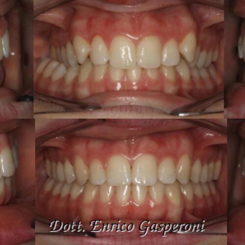 Deficit del mascellare con deviazione funzionale della mandibola