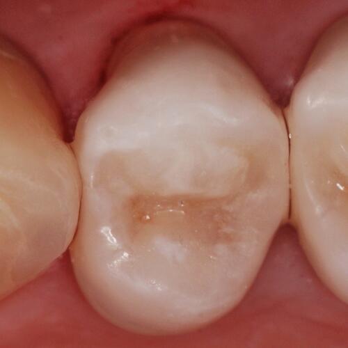 Intarsio Onlay su Premolare Superiore