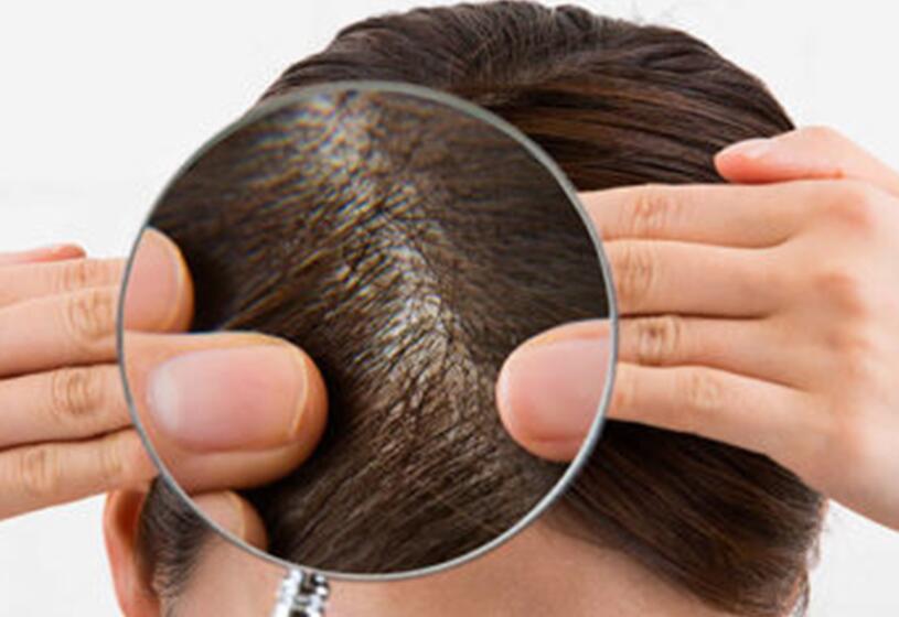 La polvere per capelli fa male? 9 cose che forse non sai