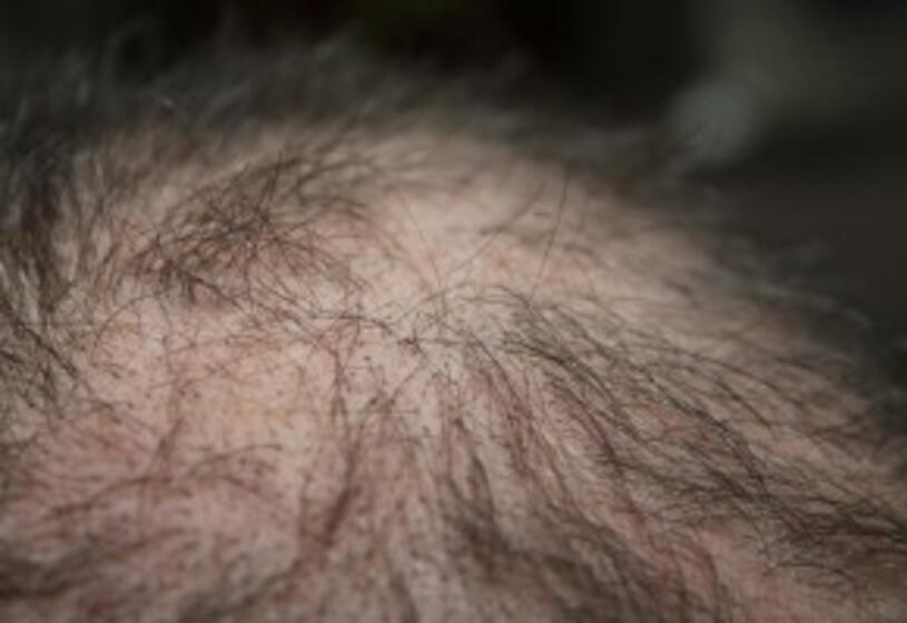 Diradamento dei capelli: le cause più frequenti