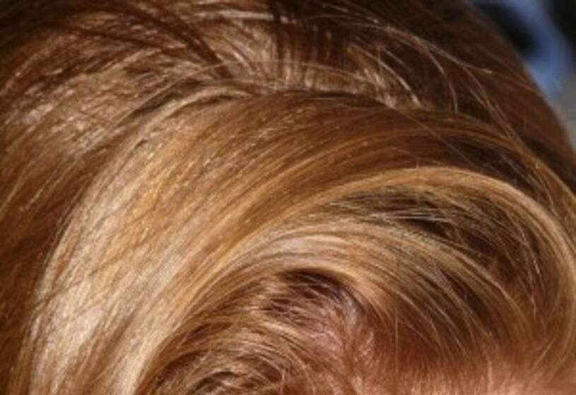 Reintegrazione graduale dei capelli: perché sceglierla
