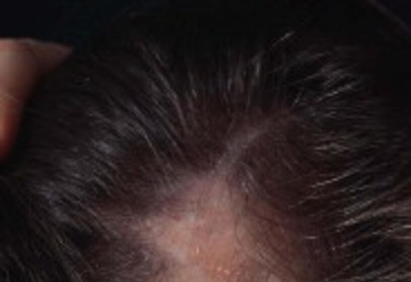 Cura per l'alopecia: tutto dipende dalle cause
