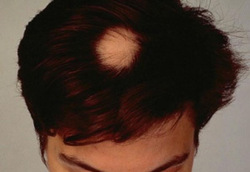 Alopecia areata femminile: un fenomeno comune