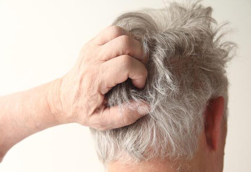 Prurito al cuoio capelluto: un fastidio diffuso