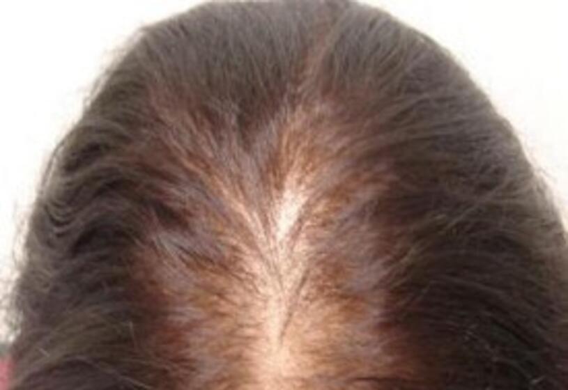 L'alopecia nelle donne: un fenomeno da controllare