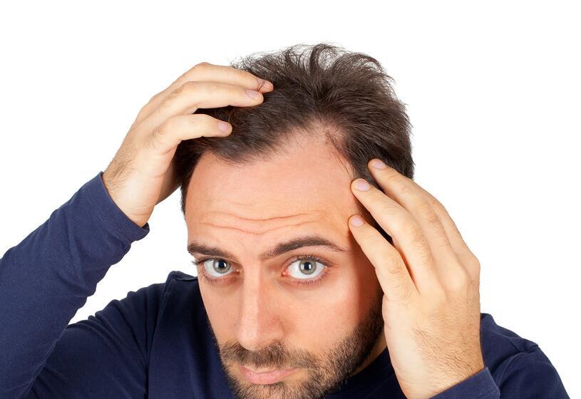 3 rimedi contro la stempiatura: le abitudini da cessare per ridurre la stempiatura