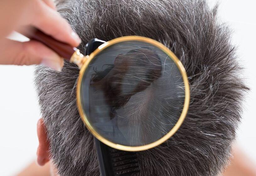Problemi di capelli: quali sono e come affrontarli