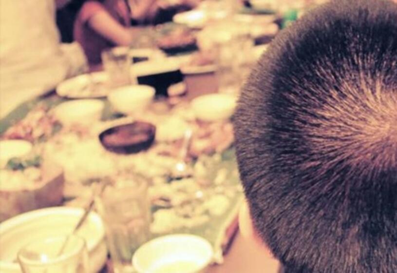 Cure caduta capelli: le proposte di HairAid