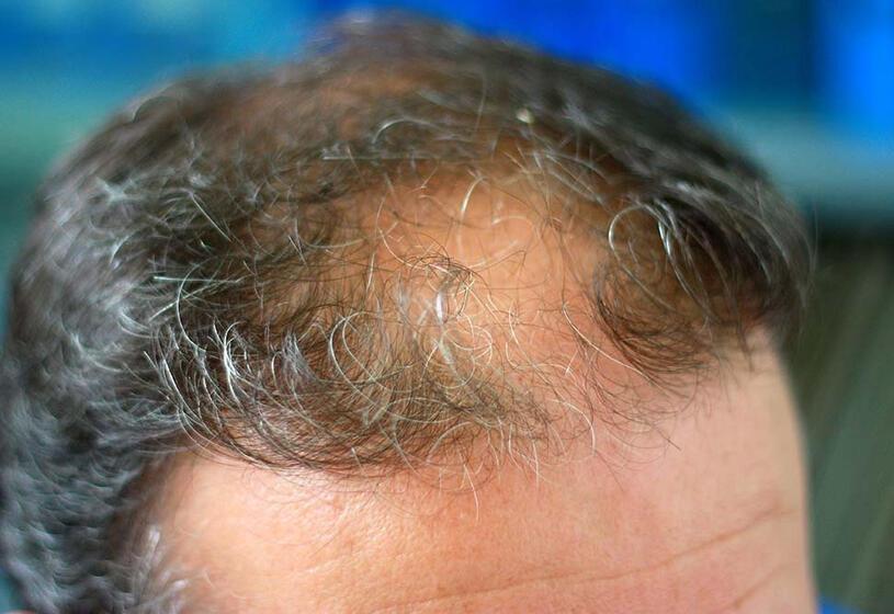 Perdita di capelli e vecchiaia: cosa fare [prima parte]