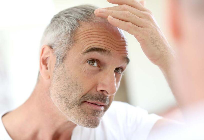 Perdita di capelli e vecchiaia cosa fare [seconda parte]