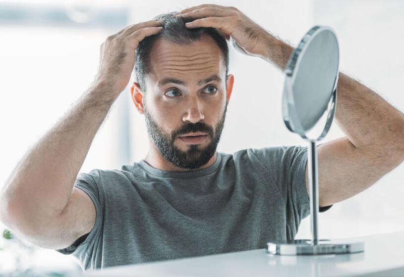 7 consigli per la cura della tua alopecia da stress