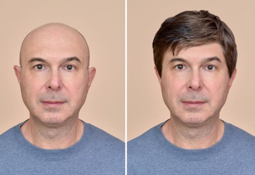 Parrucca per alopecia detraibile: come funziona