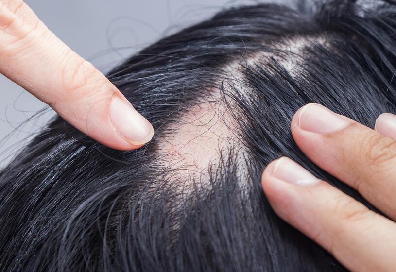 Alopecia areata incognita: 5 risposte al