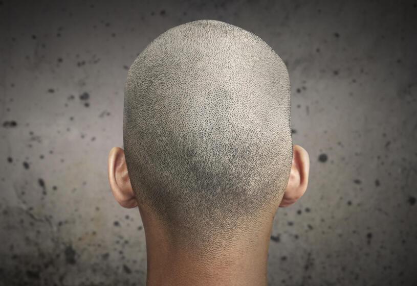 Tricopigmentazione: come funziona, quando farla e quando no