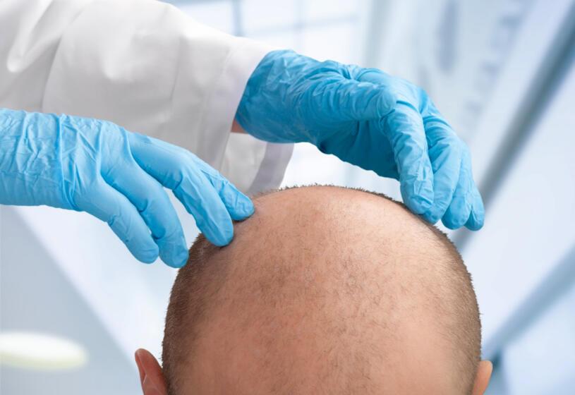 Meglio trapianto di capelli o protesi? 5 pro e contro