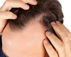 hairaid it prodotti-capelli 007