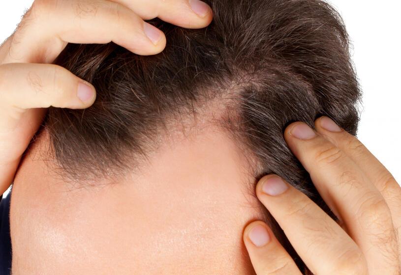 Stempiatura dei capelli: 7 cose che puoi fare subito