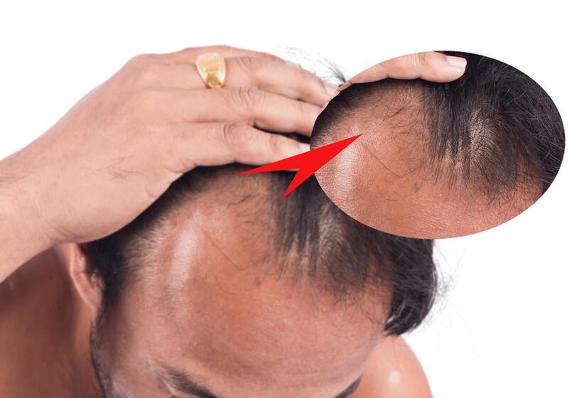Le parrucche fanno perdere i capelli? La risposta di HairAid
