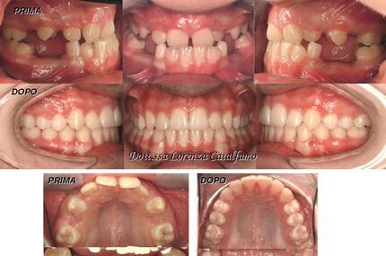 dentista-riccione-marcobartolini it casi-clinici 003
