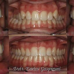 dentista-riccione-marcobartolini it home 002