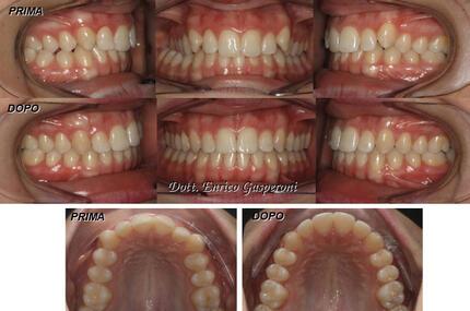 dentista-riccione-marcobartolini it casi-clinici 002