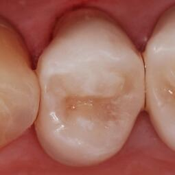 dentista-riccione-marcobartolini it home 001