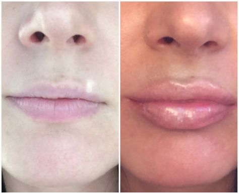 prima e dopo lip plumper