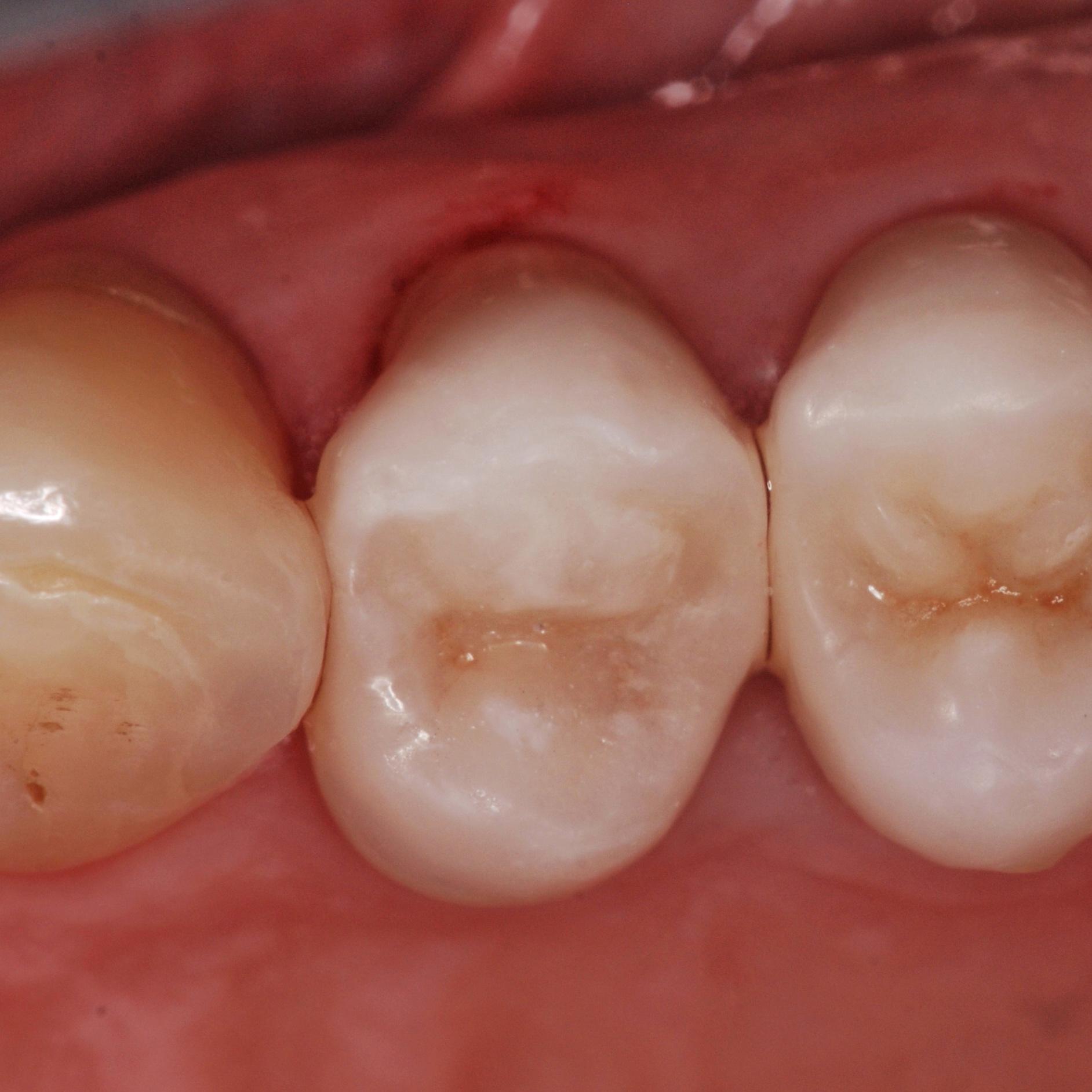 dentista-riccione-marcobartolini it intarsio-onlay-su-premolare-superiore 003